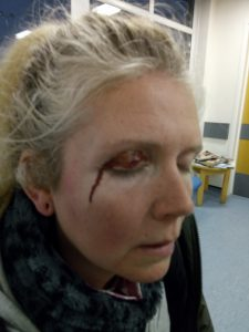 female hunt sab punched in face by warwickshire hunt